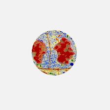False-colour TEM of root cell division Mini Button