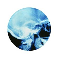 "Skull X-ray 3.5"" Button"