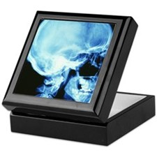 Skull X-ray Keepsake Box