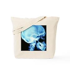 Skull X-ray Tote Bag