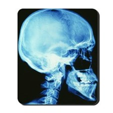 Skull X-ray Mousepad