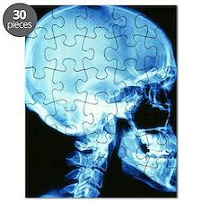 Skull X-ray Puzzle