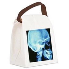 Skull X-ray Canvas Lunch Bag