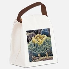 Sperm production site, SEM Canvas Lunch Bag