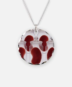 Spare kidneys Necklace