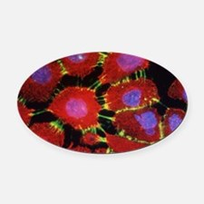 Squamous cell carcinoma Oval Car Magnet