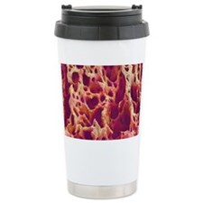 Spongy bone, SEM Travel Coffee Mug