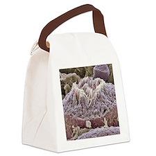 Sperm production site, SEM Canvas Lunch Bag