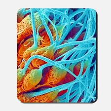 Sperm production, SEM Mousepad