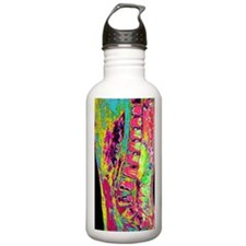 Spinal cord cancer MRI Sports Water Bottle