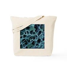 Spongy bone, SEM Tote Bag