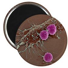 T lymphocytes and cancer cells, SEM Magnet