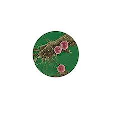 T lymphocytes and cancer cells, SEM Mini Button