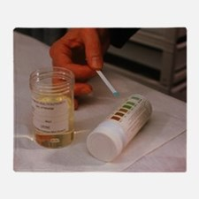 Test for urine glucose level Throw Blanket
