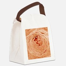 Sweat pore, SEM Canvas Lunch Bag