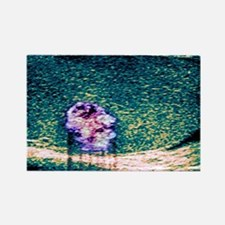 Testicular cancer, ultrasound sca Rectangle Magnet