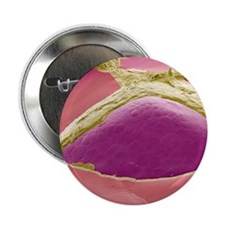 "Thyroid follicle, SEM 2.25"" Button"