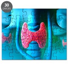 Thyroid gland Puzzle