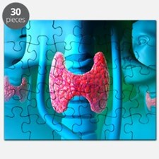 Thyroid gland Puzzle