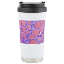 Thyroid gland, light mi Travel Mug