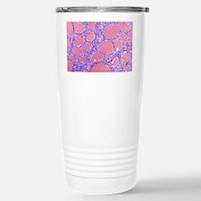 Thyroid gland, light mi Travel Mug