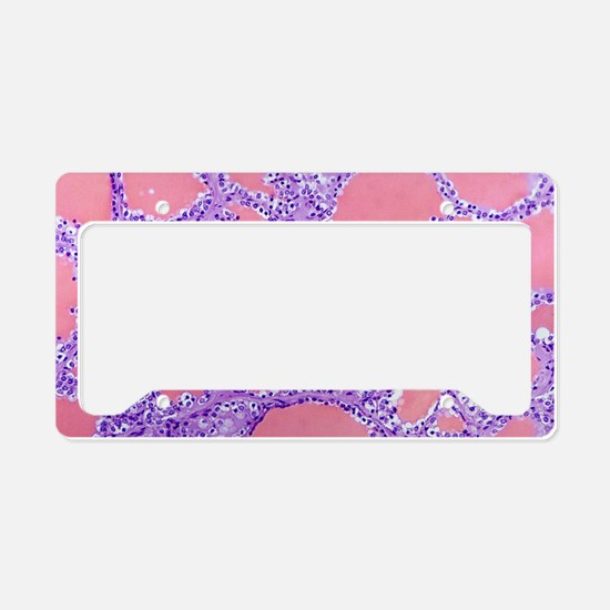 Thyroid gland, light microgra License Plate Holder