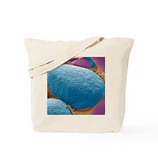 Thyroid gland, SEM Tote Bag