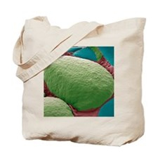 Thyroid gland, SEM Tote Bag