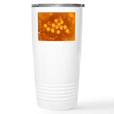 Tinted TEM of coxsackie Travel Mug