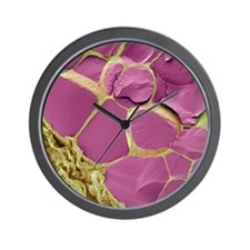 Thyroid gland, SEM Wall Clock
