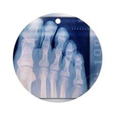 Toes, X-ray Round Ornament