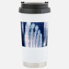 Toes, X-ray Stainless Steel Travel Mug
