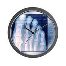 Toes, X-ray Wall Clock