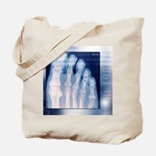 Toes, X-ray Tote Bag