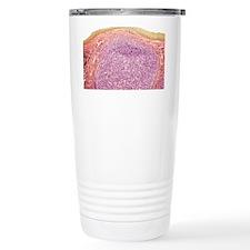 Tonsil, light micrograp Travel Mug