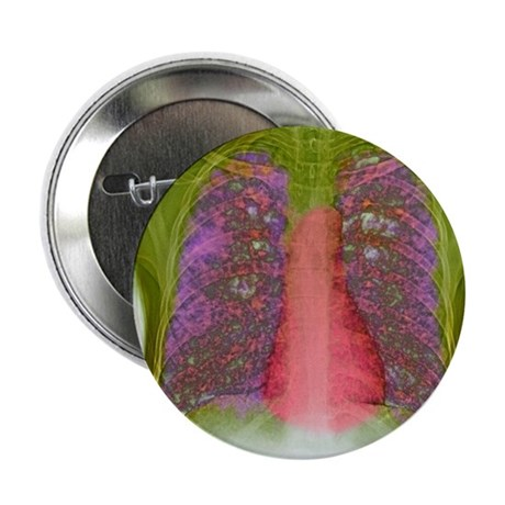 "Tuberculosis, X-ray 2.25"" Button"