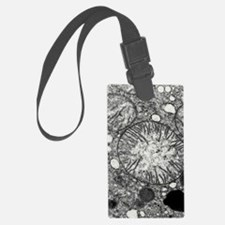 Transmission electron micrograph Luggage Tag