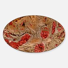 Ulcerative colitis Decal