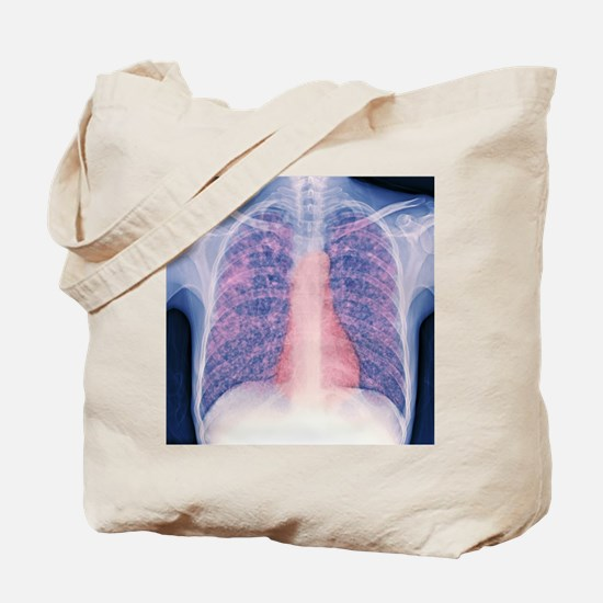 Tuberculosis, X-ray Tote Bag