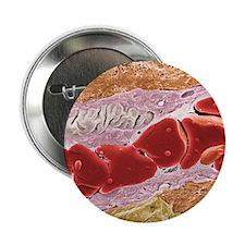 """Tumour blood vessel, SEM 2.25"""" Button"""