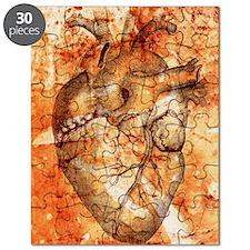 Unhealthy heart Puzzle