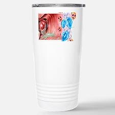 Vaginitis Stainless Steel Travel Mug