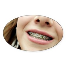 Trapped food in dental braces Decal