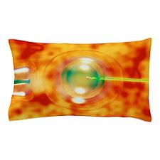 Vitro fertilisation Pillow Case