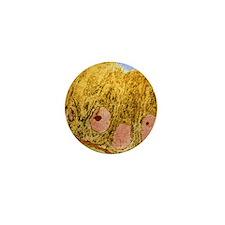 Uterus cells, TEM Mini Button