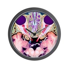 Vision and the brain, MRI scan Wall Clock