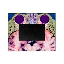 Vision and the brain, MRI scan Picture Frame