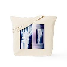 Wrist bones, X-ray Tote Bag