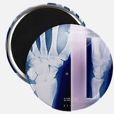 Wrist bones, X-ray Magnet