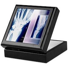 Wrist bones, X-ray Keepsake Box